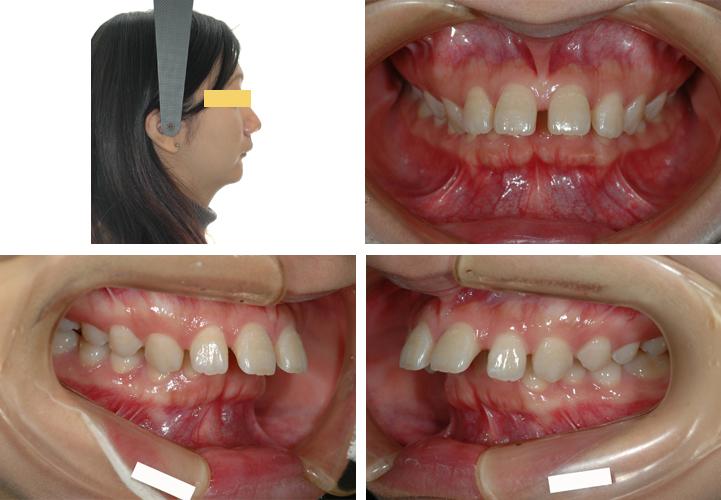 出っ歯やすきっ歯、受け口の矯正は、きたがわ矯正歯科にお任せ